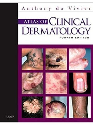 Atlas of Clinical Dermatology 4th Edition Anthony du Vivier
