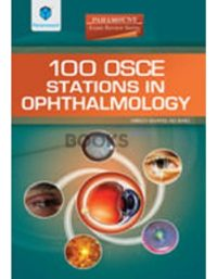 100 OSCE Stations in Ophthalmology paramount