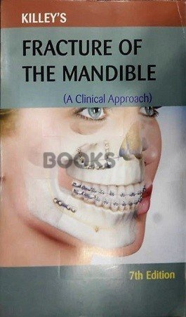 Fracture of the mandible