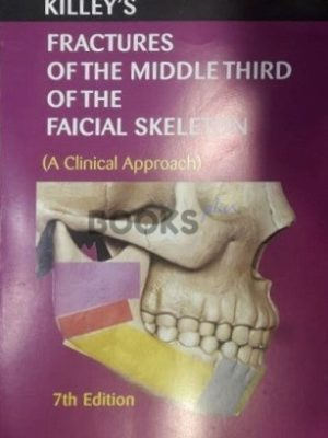 Fractures of the middle third of the facial skeleton