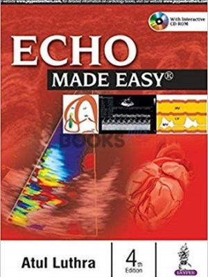 ECHO Made Easy 4th Edition