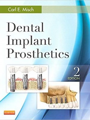 Dental Implant Prosthetics Carl Misch 2nd Edition