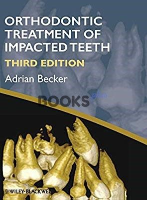 Orthodontic Treatment of Impacted Teeth 3rd Edition